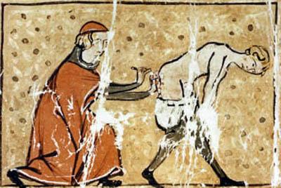 Middeleeuwse behandeling van aambeien